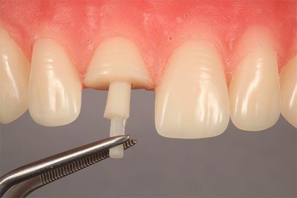 Restauração do dente anterior severamente fraturado